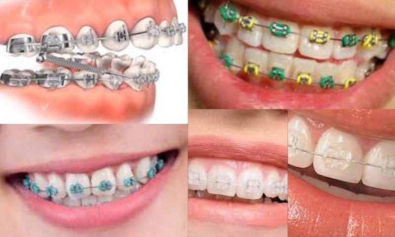 Lamine Diş